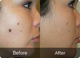 How to remove skin tags easily at home