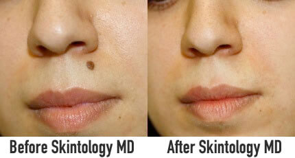 Skintology-MD-benefits